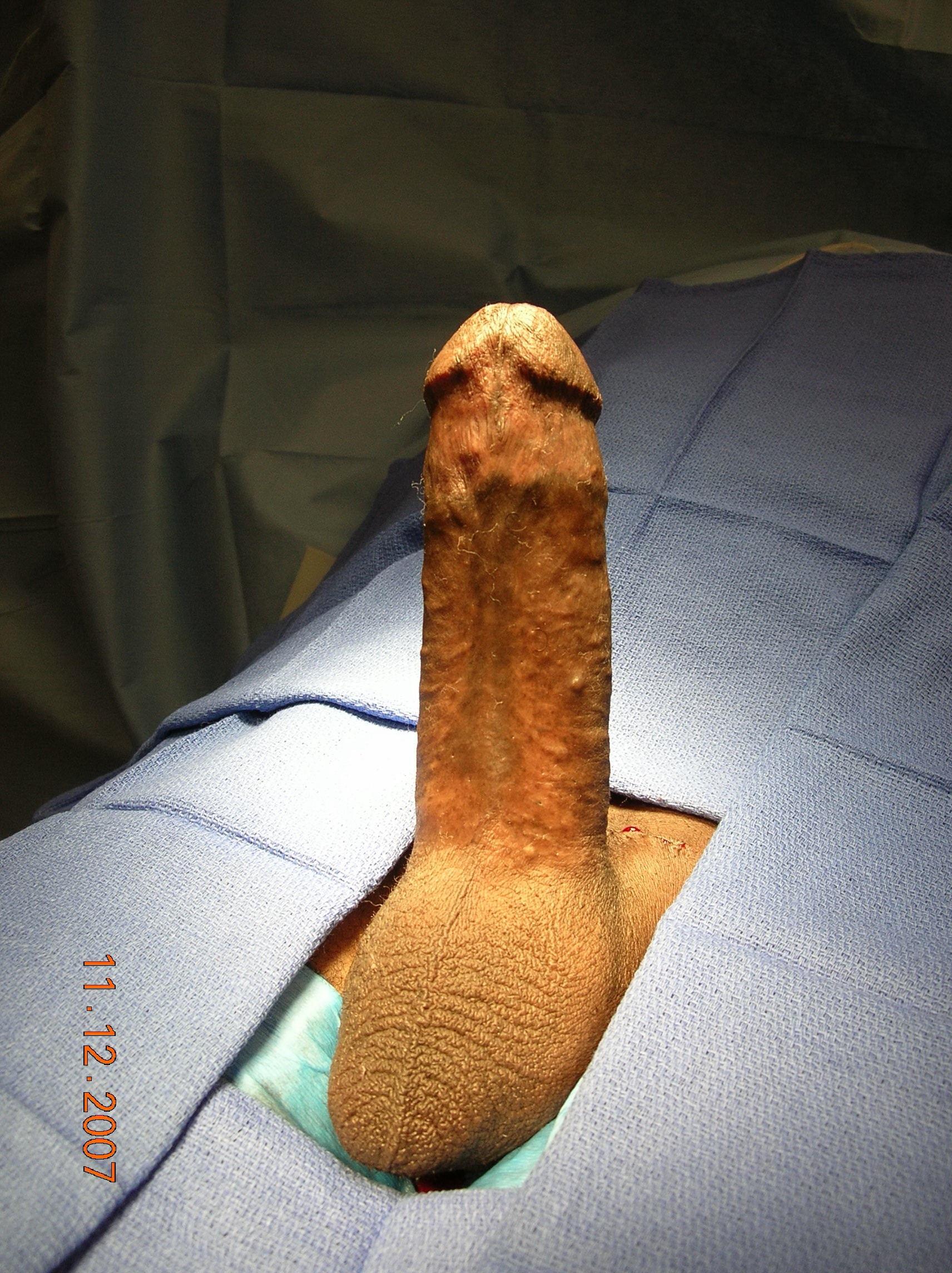 Maximum Penis 110