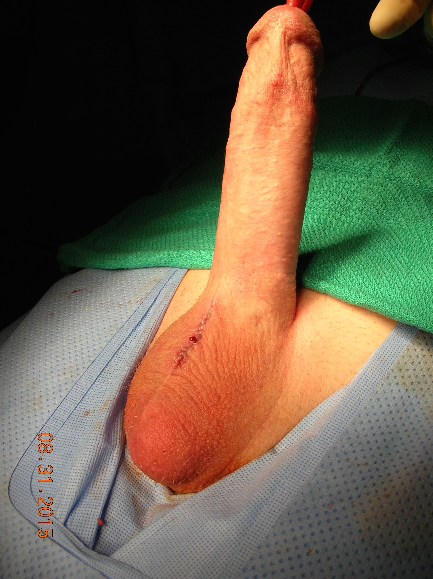 Male penis enlargement