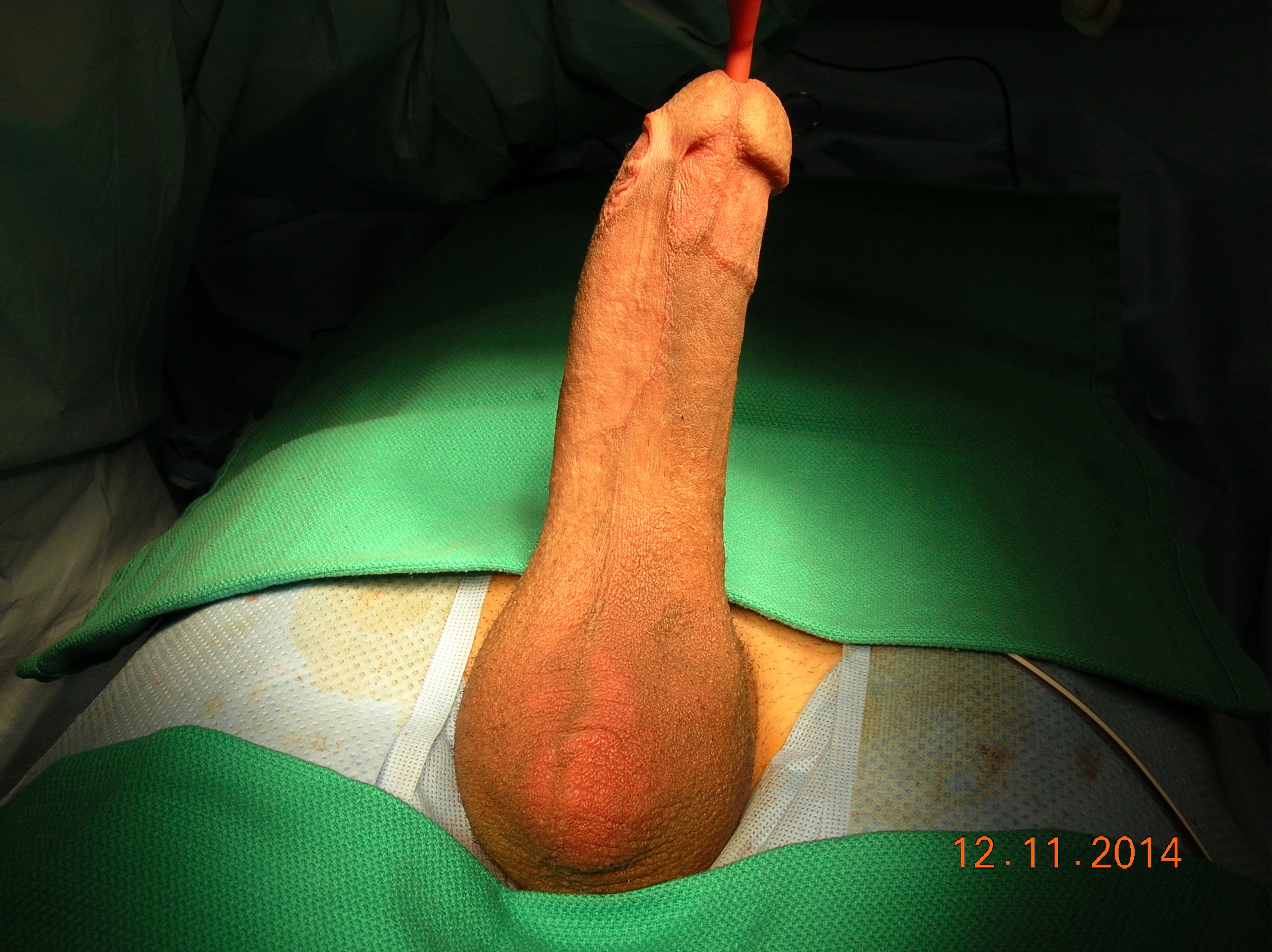 male genital enlargement