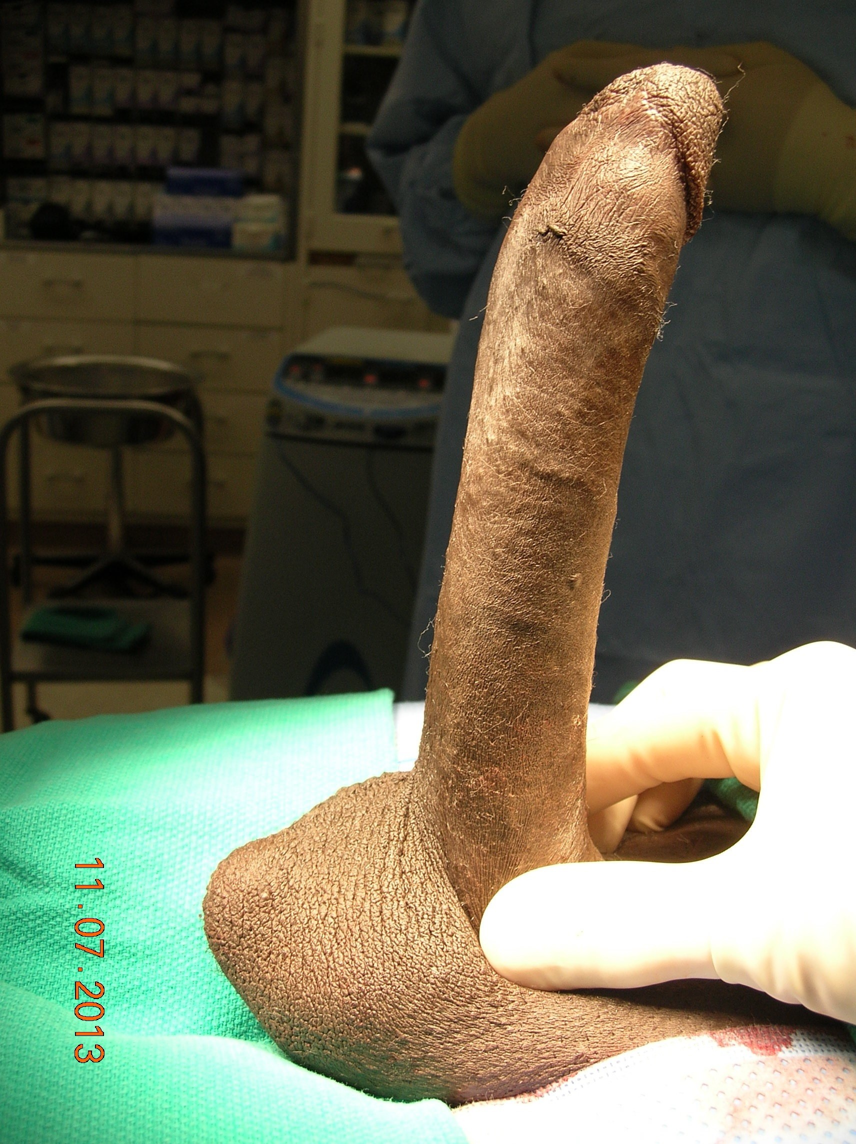 male penis photos pics